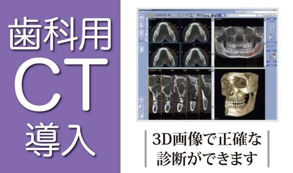 歯科用CT導入